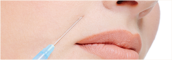 контурная пластика губ и лица