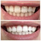 ekspress-otbelivanie-zubov