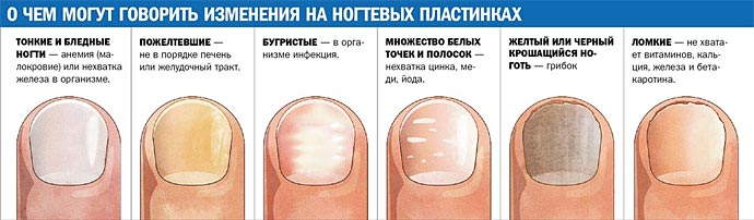 Признаки грибка ногтей ног фото