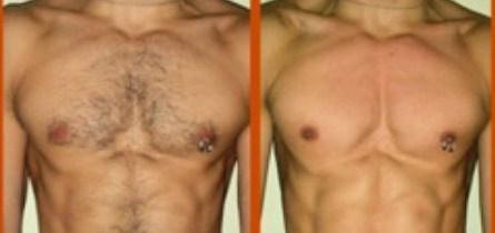 лазерная эпиляция на груди