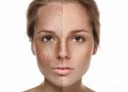 lazernoe-udalenie-giperpigmentacii