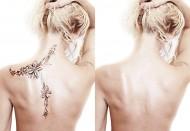 lazernoe-vyvedenie-tatuirovok