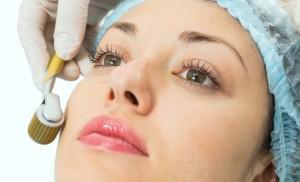 mezoterapiya-lica-podarite-svoej-kozhe-molodost