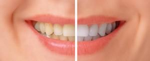otbelivanie-zubov-kiev
