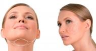 rf-lifting-effektivna-podtyazhka-lica